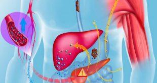 مقال – هذه الأطعمة تساعد على تنقية الكبد من السّموم