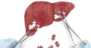 مقال – أفضل 8 أطعمة لتنقية الكبد من السموم
