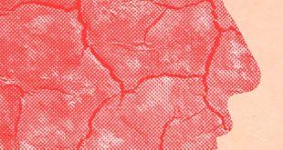 مقال – كيف نحمي بشرتنا من الجفاف في الشتاء؟